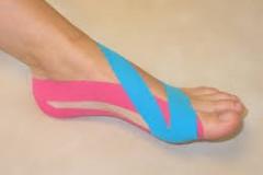 MT voet